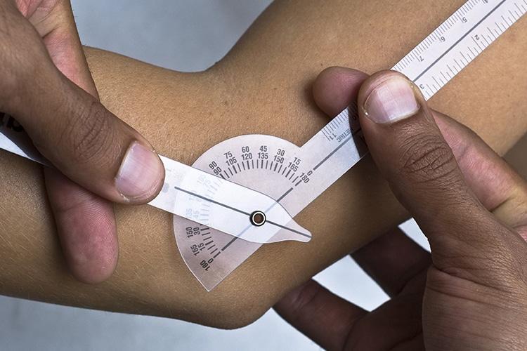 Tratamientos de Acupuntura para reumatología en Clínica Fuensalud