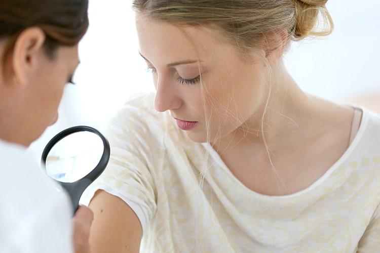 Acupuntura para Dermatología en Clínica Fuensalud