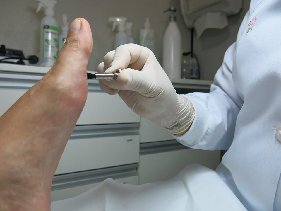 Tratamiento del Papiloma o Verruga plantar Clínica Fuensalud