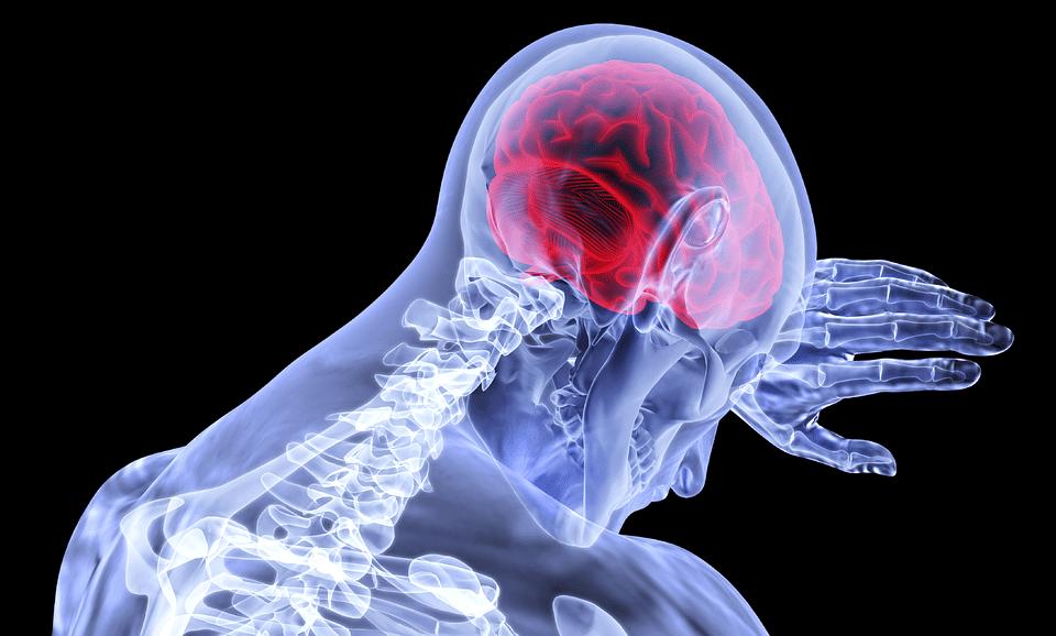 ICTUS y el dolor de cabeza