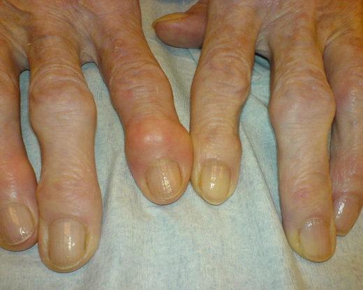 Sufres Artrosis? causas, síntomas y tratamiento