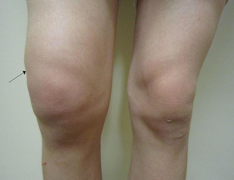 artrosis derrame articular