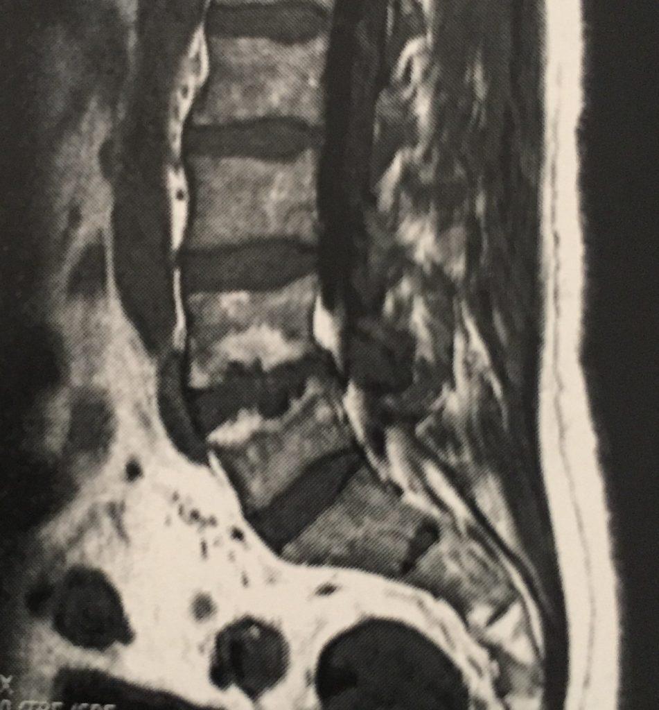 Rm de columna herniada o con hernia discal