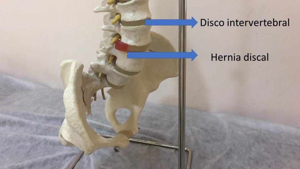 hernia discal punto rojo