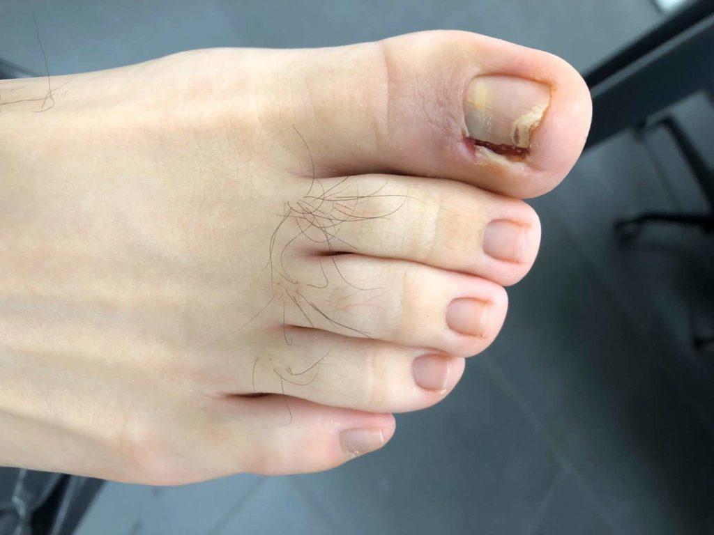 cicatrización uñas encarnadas