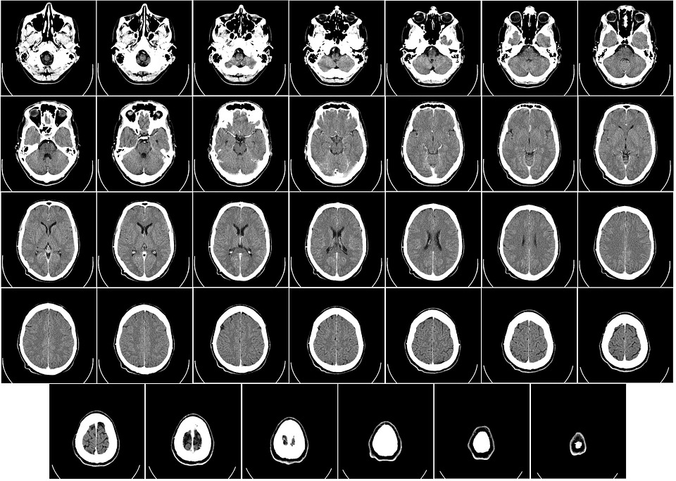 resonancia magnética esclerosis múltiple