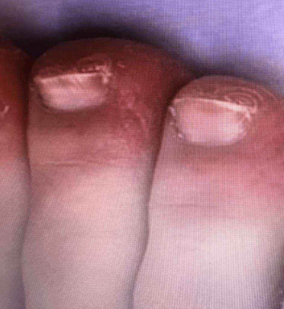 Erupciones en los pies coronavirus por Clínica Fuensalud
