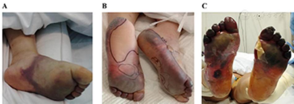 lesiones en la piel por coronavirus