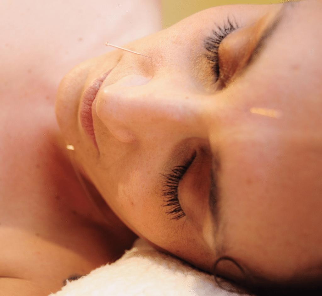 Acupuntura facial 2 por Clínica Fuensalud