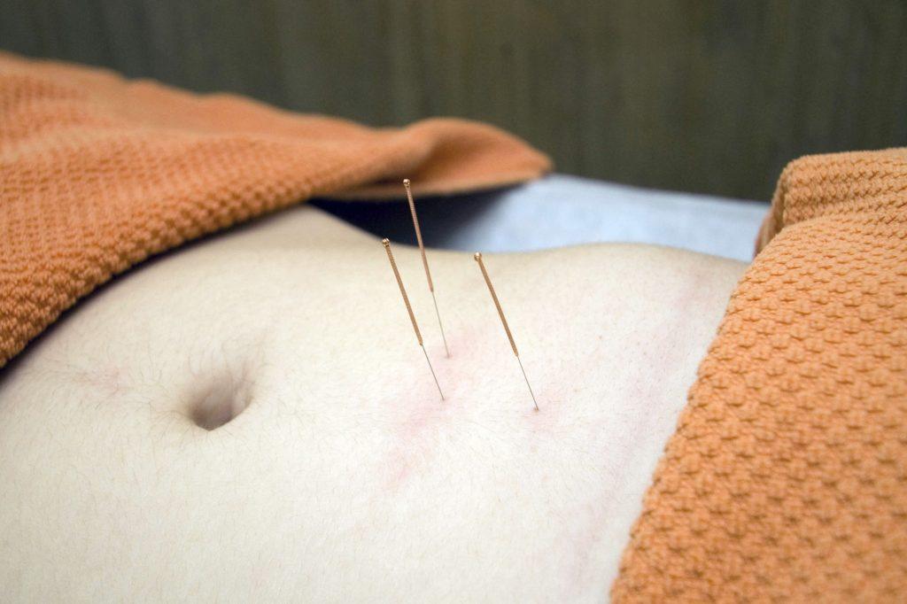 Agujas de Acupuntura para Problemas digestivos por Clínica Fuensalud