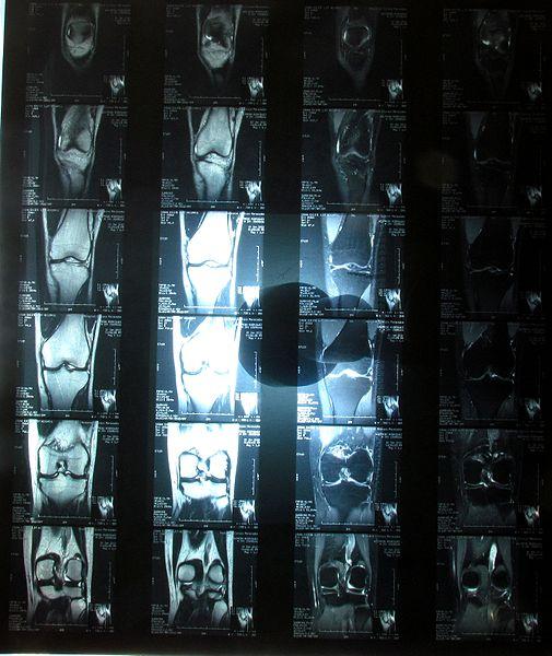 Resonancia Magnética por Clínica Fuensalud