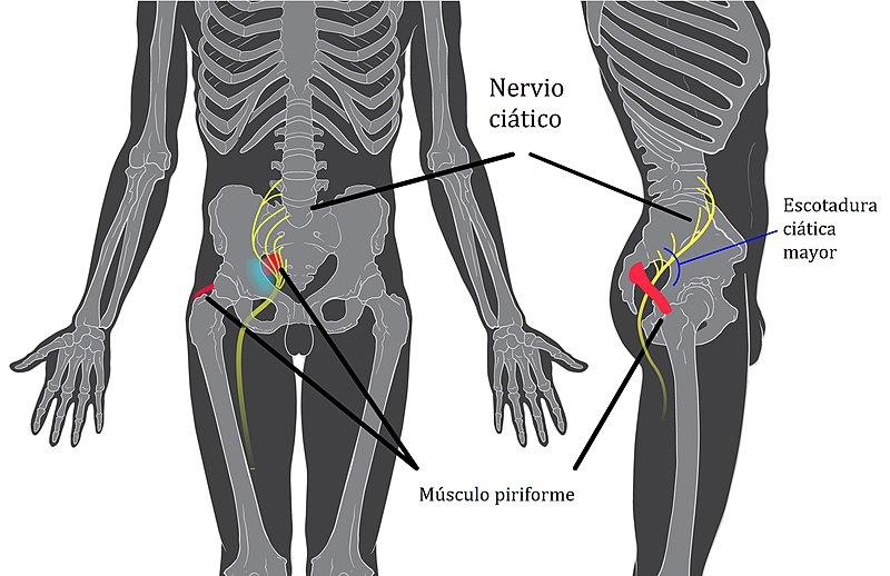 Nervio Ciático por Clínica Fuensalud