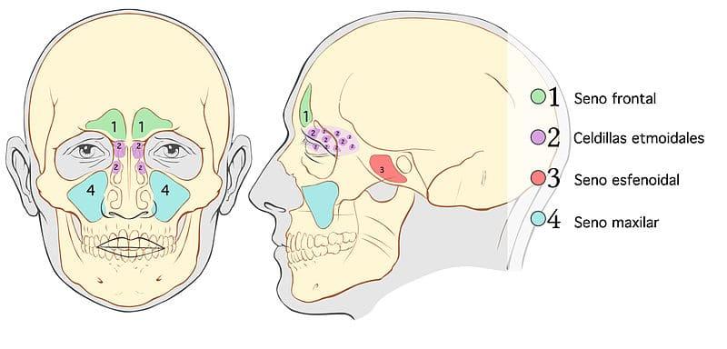 Sinusitis por Senos paranasales