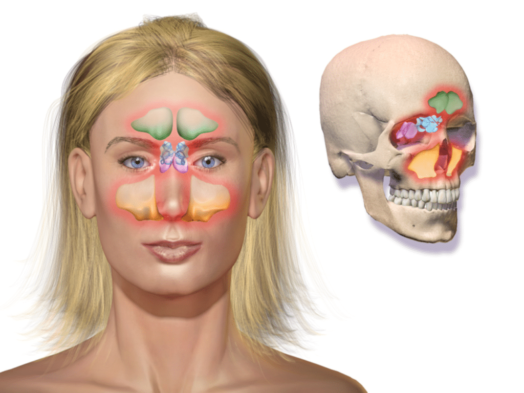 Sinusitis por Clínica Fuensalud