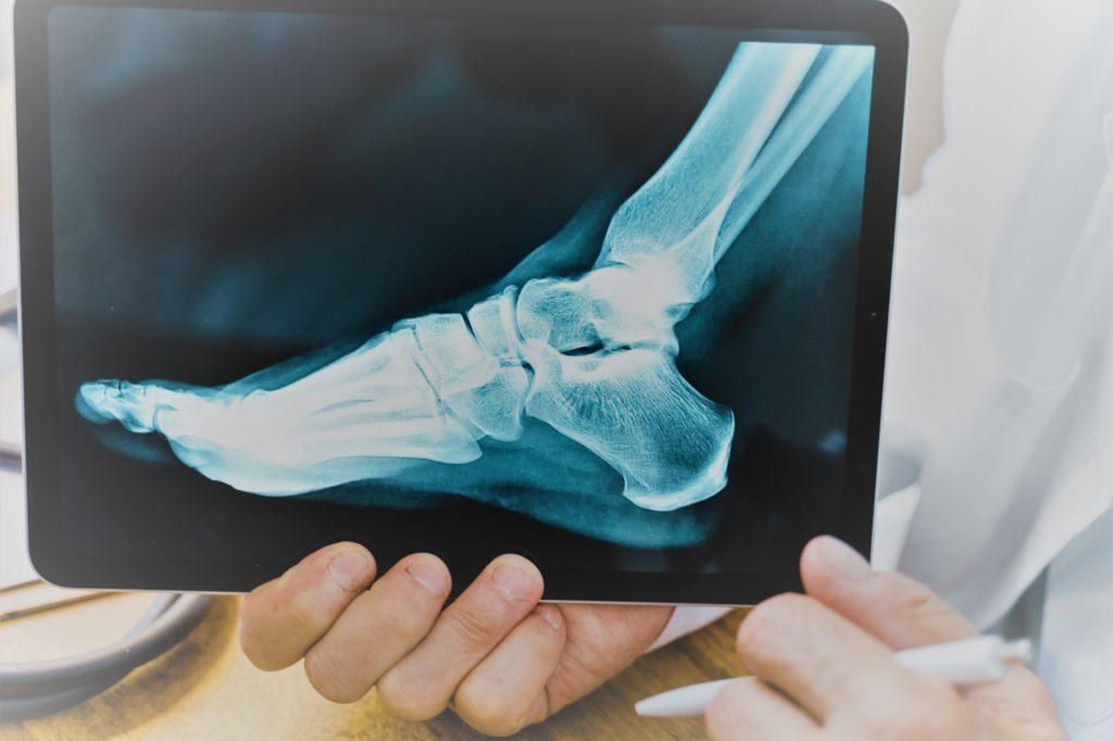 Radiografía de pie por Clínica Fuensalud