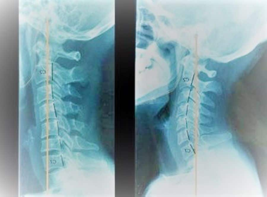 Radiografía de cervicales por Clínica Fuensalud