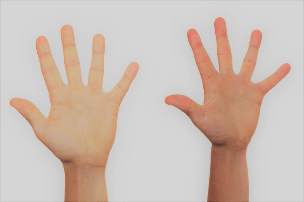 Recuperación total de la mano Dupuytren de Clínica Fuensalud