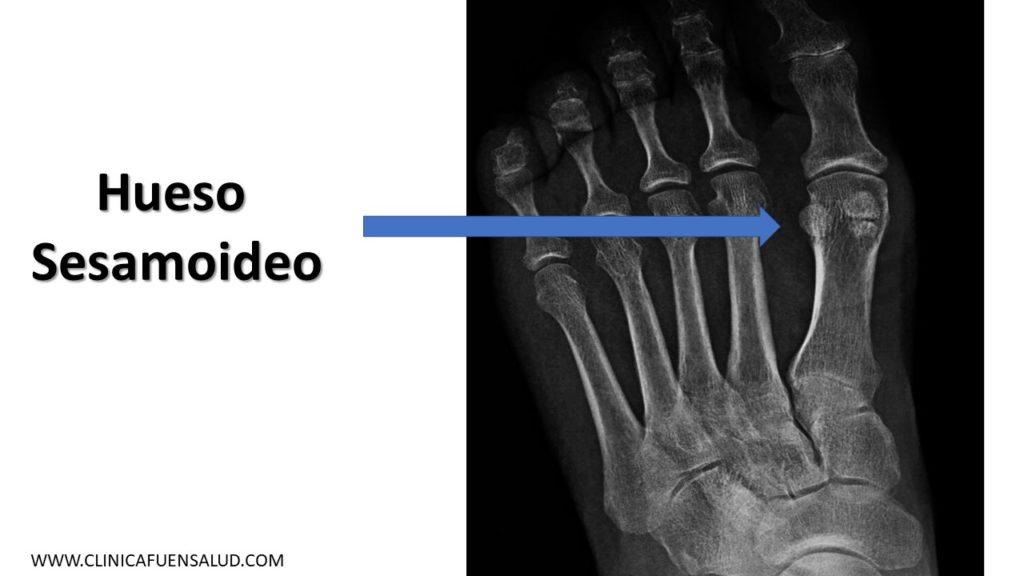 Anatomía del pie  hueso sesamoideo por Clínica Fuensalud
