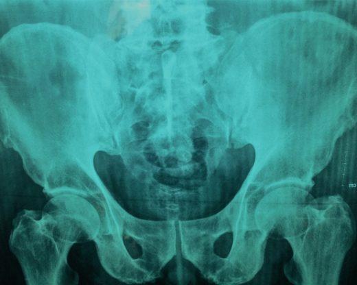 Prótesis de cadera por Clínica Fuensalud